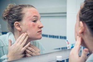 La toxicodermia requiere que tenga que ser el especialista en dermatología el que oriente al paciente sobre la reacción de forma muy individualizada.