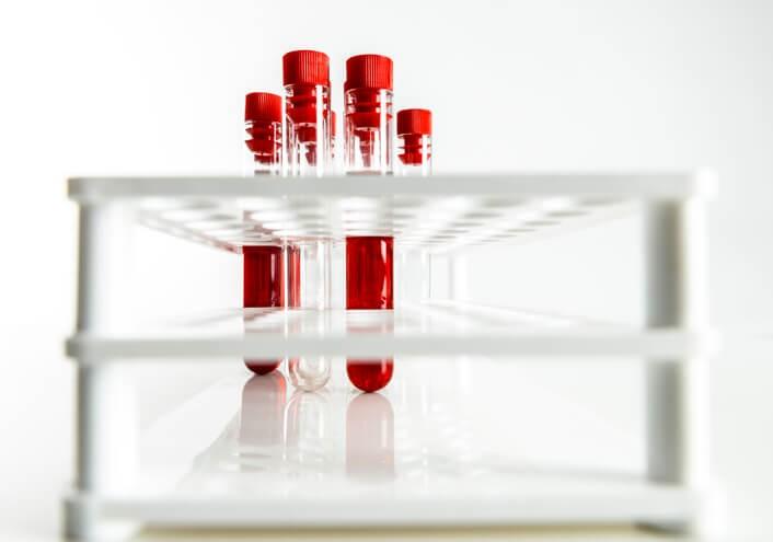 Por la sangre pasan la mayoría de sustancias de nuestro organismo, por lo que poder efectuar un análisis de ésta nos permite interpretar muchos aspectos acerca del estado de salud de una persona.