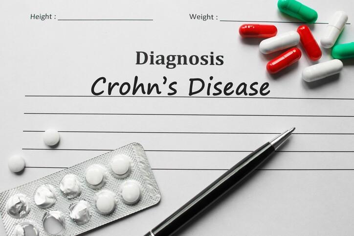 La enfermedad de Crohn es una de las principales del grupo de Enfermedades Inflamatorias Intestinales (EII).