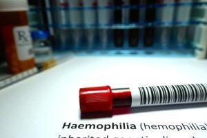 El tratamiento específico del niño hemofílico consiste en administrar lo que le falta o no le funciona adecuadamente.
