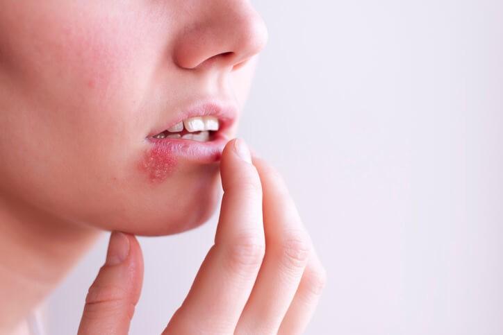 Cualquier médico entrenado, y por supuesto un dermatólogo, somos capaces de reconocer la clínica de un herpes zóster.