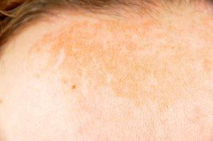 Aunque es menos evidente, también podemos ver pigmentación tipo melasma en hombres, sobre todo si son personas de piel muy morena y muy expuesta al sol