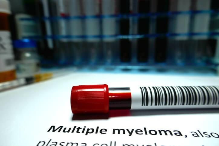 El diagnóstico inicial del mieloma múltiple puede ser casual al ver alteraciones en la analítica de sangre, especialmente la presencia de una paraproteína en ella.