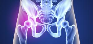 La cadera está formada por la unión de dos huesos: el hueso coxal y el fémur, además, la articulación está provista de unas bosas serosas llamadas Bursas.