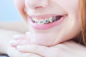 Debemos tener en cuenta que la ortodoncia completa puede requerir entre seis y treinta meses para finalizar.