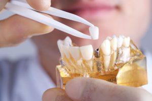 Como ya sabemos el implante colocado en la boca hace la función de una raíz dental fisiológica. Es decir, sostiene o aloja a la corona protésica dental.