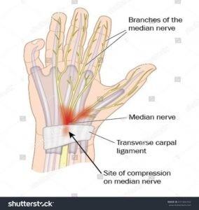 El nervio mediano tiene la capacidad de adaptarse a cualquier movimiento de nuestro brazo deslizándose a través de las envolturas que le rodean.