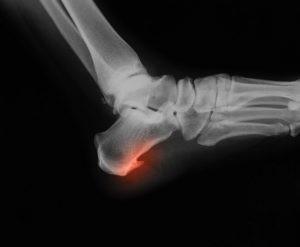 Un espolón calcáneo es un saliente óseo en el talón producido por una tensión constante de los tejidos que se insertan en él.