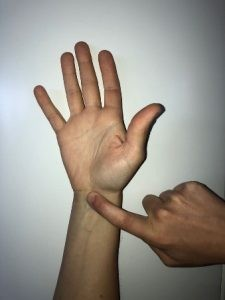 El signo de TINNEL se trata de percutir el nervio en la zona afectada (ligamento transverso) y ver si se desencadena alguna sintomatología relacionada con el nervio.