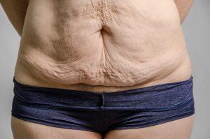 La abdominoplastia consigue un abdomen más plano, firme y una silueta más estrecha y definida. Se puede realizar tanto en mujeres como en hombres con el objetivo de volver a reparar, tensar y unir la musculatura abdominal, y eliminar el exceso de grasa y piel, teniendo como resultado un abdomen más plano y firme.