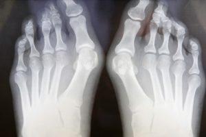Existen dos tipos de cirugía para eliminar un juanete y ambas tienen como objetivo realinear la articulación y el alivio del dolor. Se realizan con anestesia local o regional, es decir, que duermen toda la pierna para que el paciente no sienta dolor.