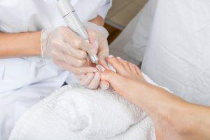 El médico puede diagnosticar una uña encarnada basándose simplemente en los síntomas que refiere el paciente y realizando una exploración física consistente en la simple inspección de la uña y la piel de alrededor.