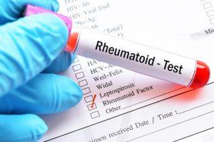 La prueba de factor reumatoide, al ser una prueba de laboratorio, no precisa de ninguna preparación previa.