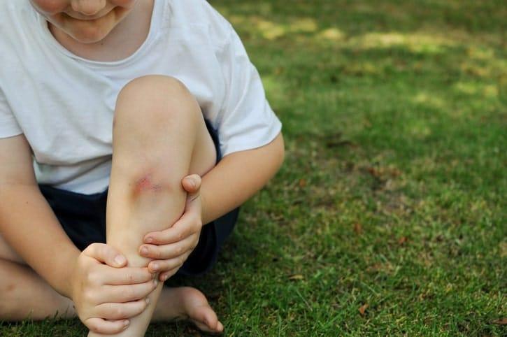 Los síntomas de una contusión son el dolor, el enrojecimiento, la inflamación y el hematoma.